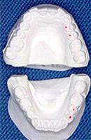 顎模型の採取