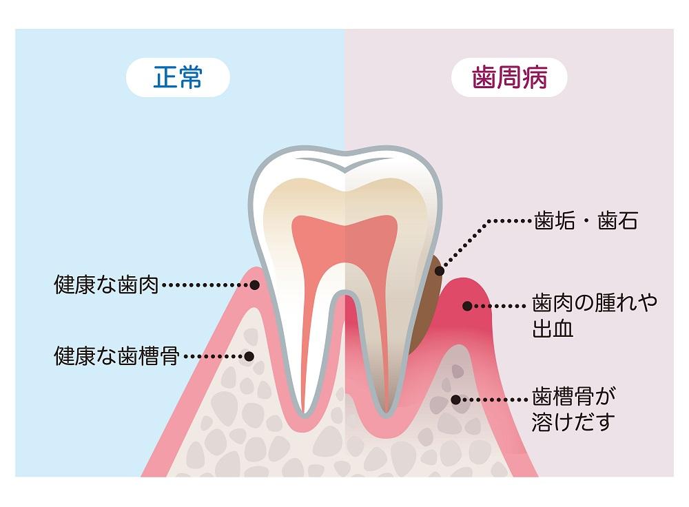 歯周病との関係