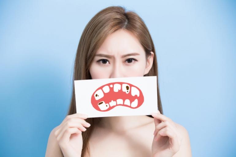 C4(虫歯の末期)