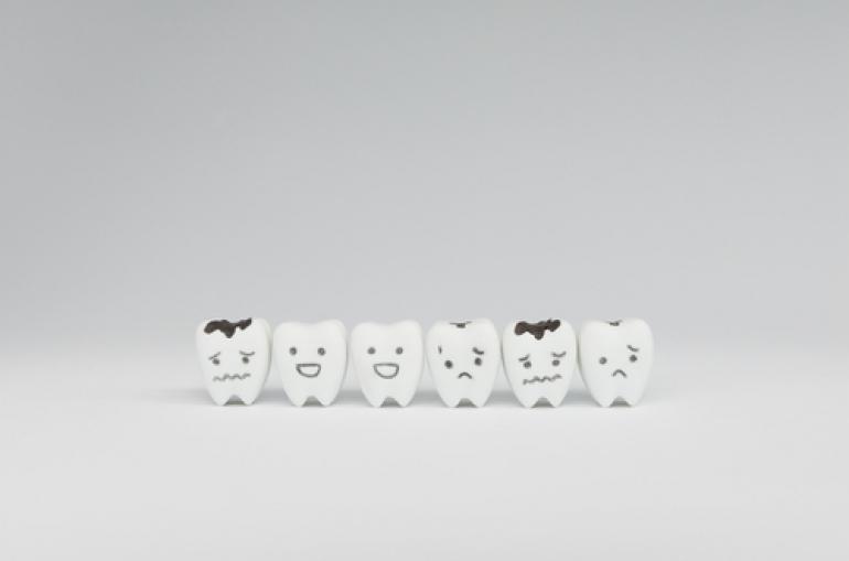 C3(神経まで侵された虫歯)