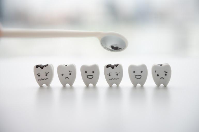 虫歯ができるメカニズムとは