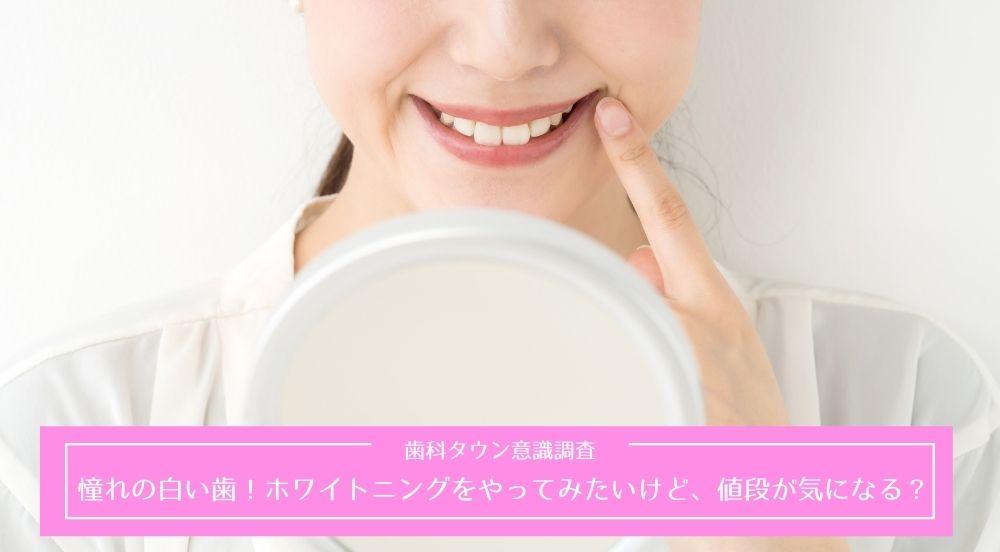 憧れの白い歯!ホワイトニングをやってみたいけど、値段が気になる?歯科タウン意識調査